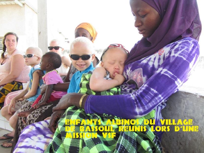 VSF suit les enfants atteints d'albinisme depuis plusieurs années. Lunettes adaptées, crèmes protectrices, vêtements couvrants améliorent leur quotidien.